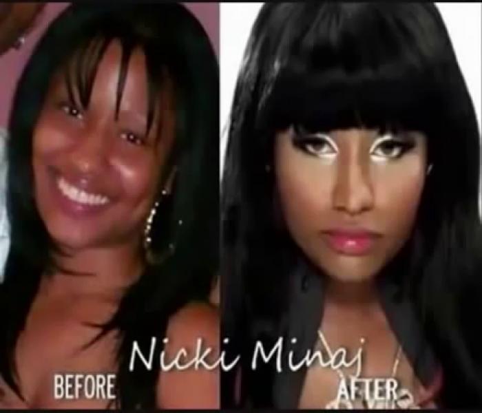 Nicki Minaj Before and After Plastic Surgery